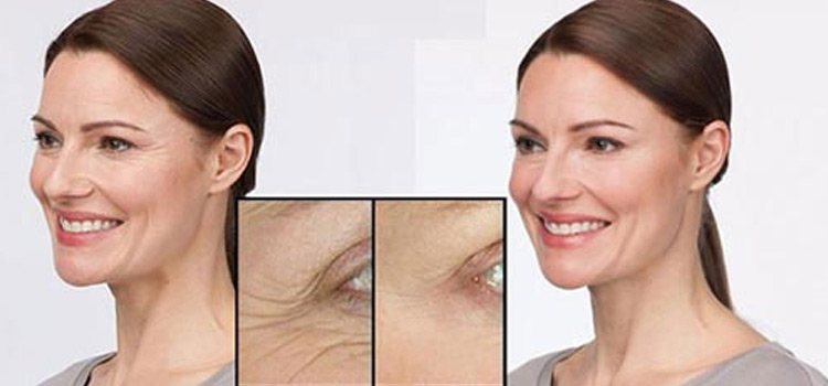 Solvaderm Before After