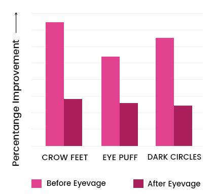 Eyevage