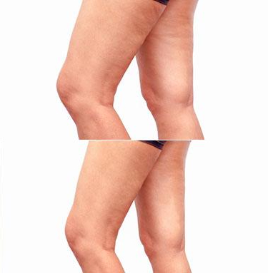 legs-before-after