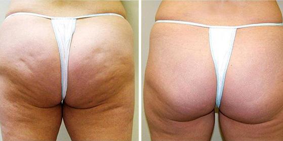 cellulite-before